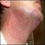 Skin Tretment